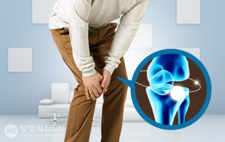 관절염의 원인, 증상, 치료법